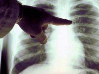 Ospedale di Potenza. Al via il progetto di diagnosi precoce del tumore polmonare
