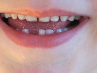 Farmacia 3.0 – curare con l'omeopatia il dolore dei denti dei lattanti