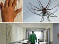 Donna morsa alla mano da un ragno violino a Tito. È il più pericoloso presente in Italia