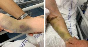 """Malasanità all'ospedale di Salerno. L'avv. Mangino:""""Anziana paziente lasciata senza assistenza per ore"""""""