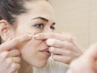 Farmacia 3.0 – i rimedi omeopatici contro l'acne