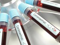 Coronavirus. A Buccino 5 positivi dallo screening organizzato dal Comune, un nuovo caso ad Agropoli