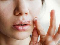 """""""In salute: consigli utili"""". Herpes: cos'è e come comportarsi"""