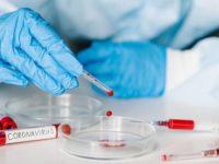 Sala Consilina: dal 25 al 27 giugno test sierologici per il Covid-19. Al via le prenotazioni dal 22 giugno