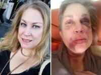 """Massacrata di botte dall'ex, processo ancora rinviato. Linda:""""Ho paura e non sono tutelata"""""""