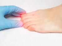 """""""In salute: consigli utili"""". Micosi delle unghie: cos'è, come si previene e come si cura"""
