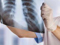 Studio Radiologico del Vallo di Diano ricerca medico radiologo e tecnico sanitario di Radiologia